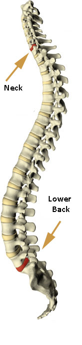 neck disc pain spine picture