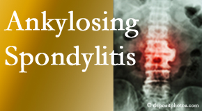 Ankylosing spondylitis is gently cared for by your Manahawkin chiropractor.