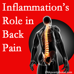The role of inflammation in Manahawkin back pain is real. Chiropractic care can manage it.