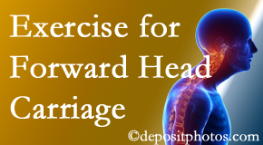 Manahawkin chiropractic treatment of forward head carriage is two-fold: manipulation and exercise.