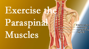 Manahawkin Chiropractic Center describes the importance of paraspinal muscles and their strength for Manahawkin back pain relief.