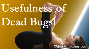 Manahawkin Chiropractic Center finds dead bugs quite useful in the healing process of Manahawkin back pain for many chiropractic patients.