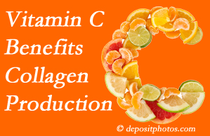 Manahawkin chiropractic offers tips on nutrition like vitamin C for boosting collagen production that decreases in musculoskeletal conditions.