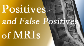 Manahawkin Chiropractic Center carefully decides when and if MRI images are needed to guide the Manahawkin chiropractic treatment plan.